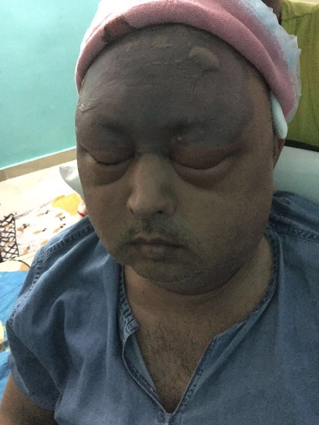 Hyderabad Man Loses Eye After Hair Transplant Doctor S License