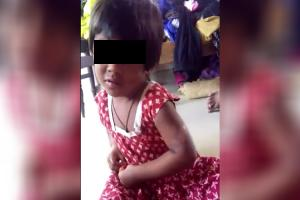 Daddy burnt me Tortured by mother and her partner 4-year-old rescued in Hyd