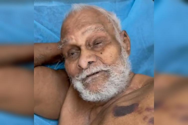 Ramananda Teertha was admitted to the government-run Gandhi Hospital in the city on April 24