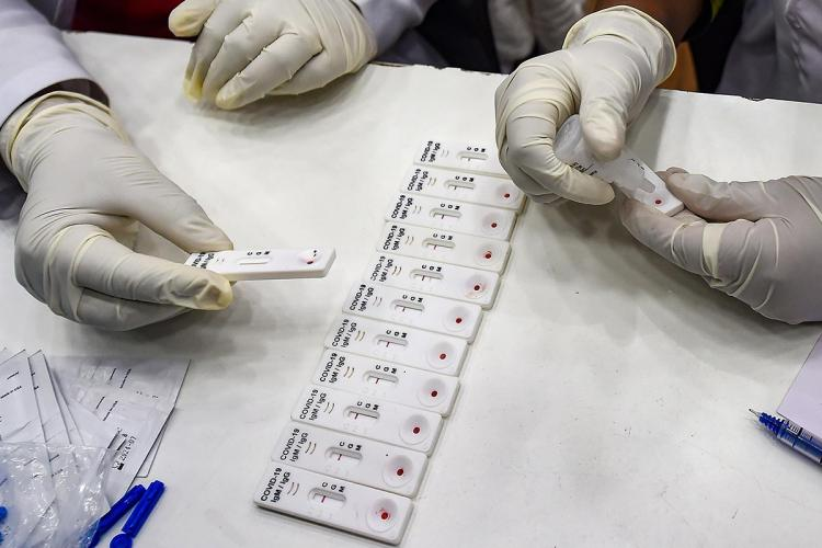 Antibody testing samples in Chennai Rapid tests or antibody tests blood samples to check for immunity in the body against novel coronavirus