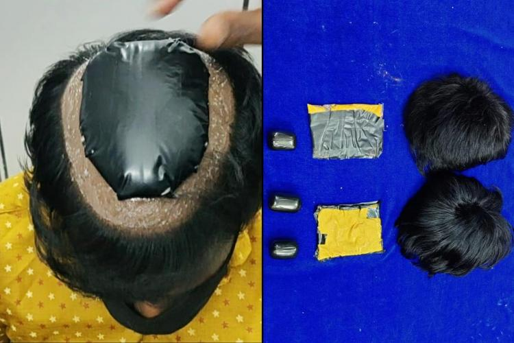Chennai customs seized gold from a man who tried to hide it under a wig pasted to his scalp