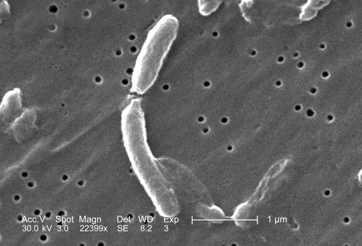 Cholera outbreak in Kerala health officials advise caution