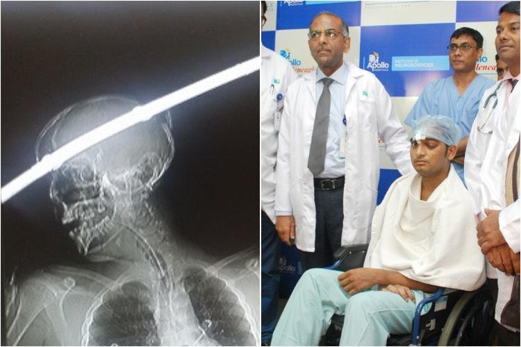 A miracle in the ER He came in with a rod through his head but he left alive