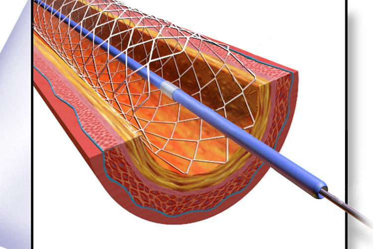 Government brings down prices of stents further, caps price
