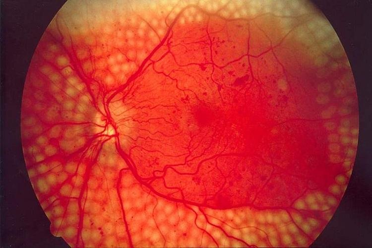 Googles new AI model to help detect diabetic retinopathy