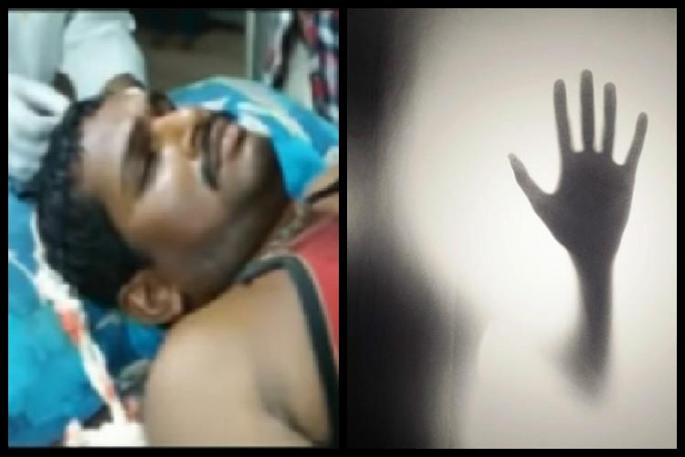 Andhra journalist thrashed with iron rods for exposing alleged sand mining