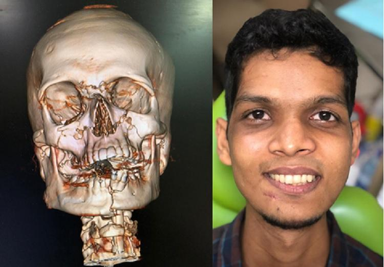 Miracle surgery How doctors restored a Chennai youths face after a massive accident