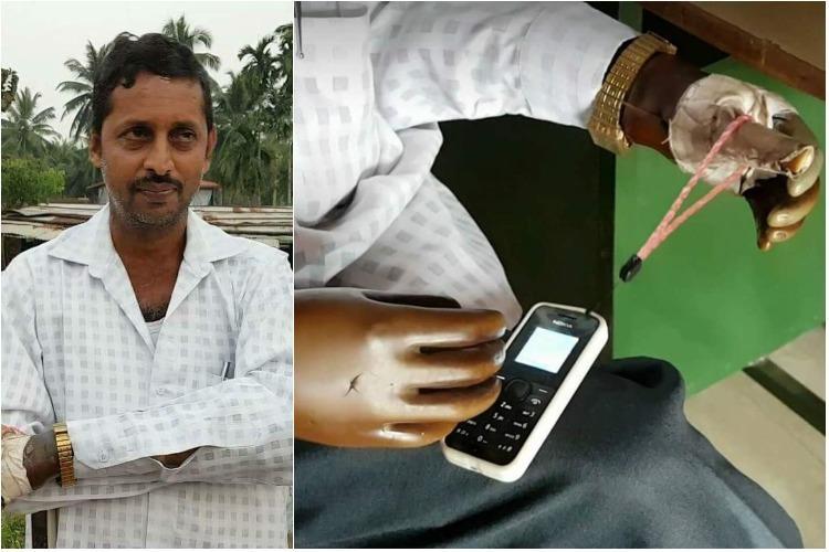 He lost both hands 15 yrs ago Now Ganesh Kamath runs a successful firm in Moodabidri