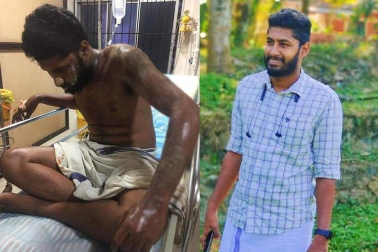 Acid attack on Kerala DYFI worker allegedly over personal argument