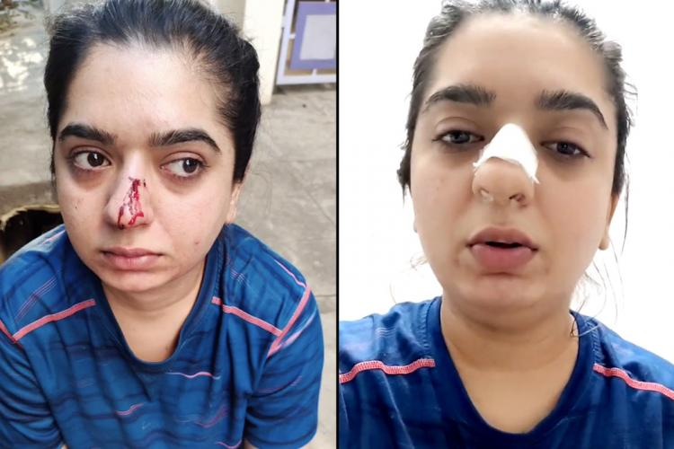 Hitesha Chandranee's nose injury before and after basic medical aid