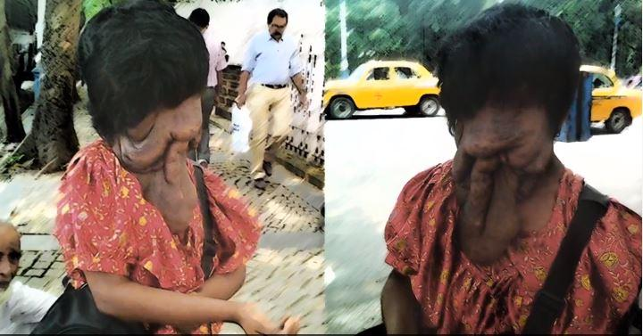 Kolkata girl with deformed face offered free surgery by Mangaluru-based institute