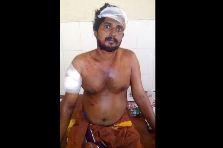 I saw a huge fireball hurtling towards me a survivors account of the Kollam fire tragedy
