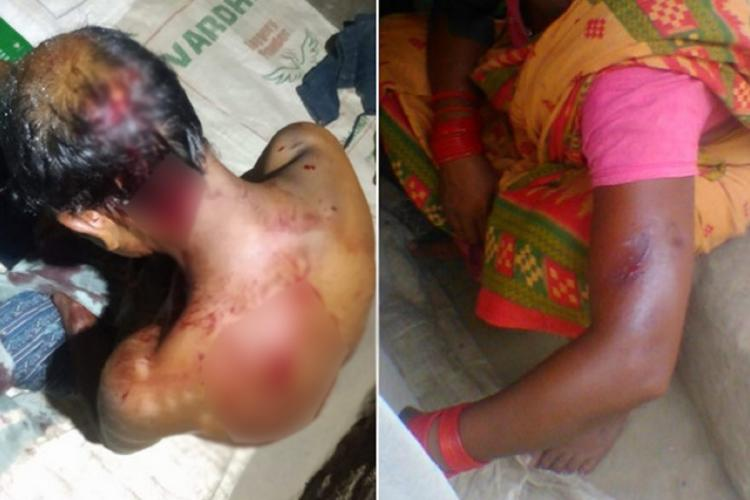 labourers attacked with bloody injuries