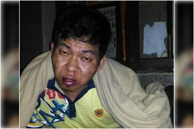 Manipuri man assaulted in Bengaluru allegedly by staff of restaurant he worked in