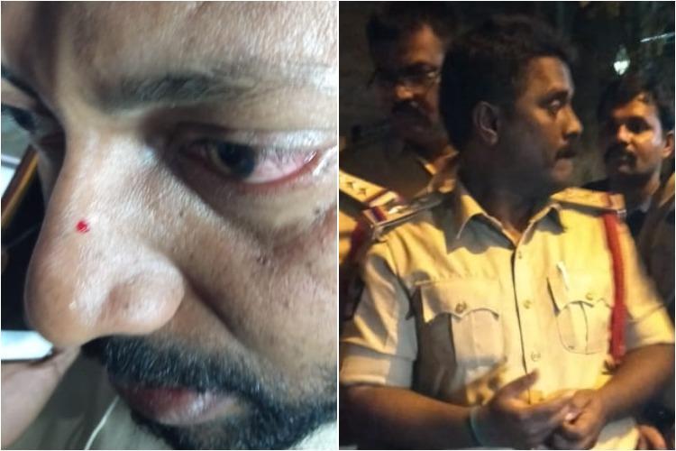 Police assault TV channel reporter at Pawan Kalyan event complaint filed