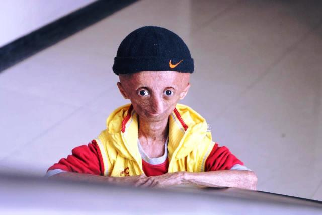 Nihal Bitla Indias first progeria patient and face of awareness campaigns dies at 15