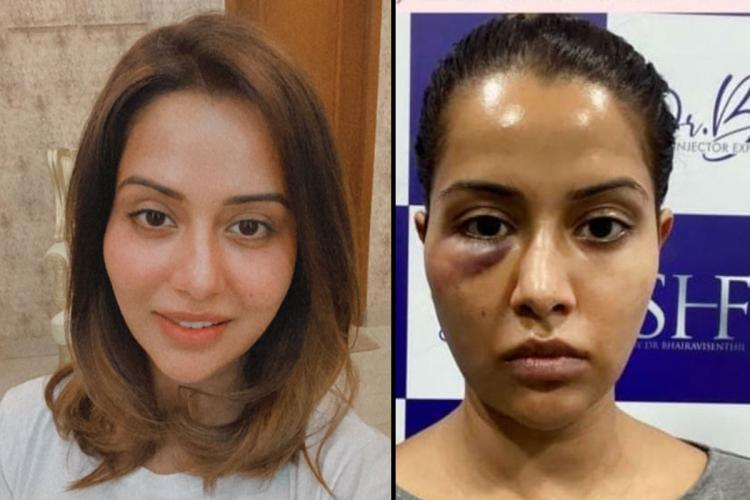 Raiza Wilsons image before the skin treatment on the left and after the skin treatment on the right