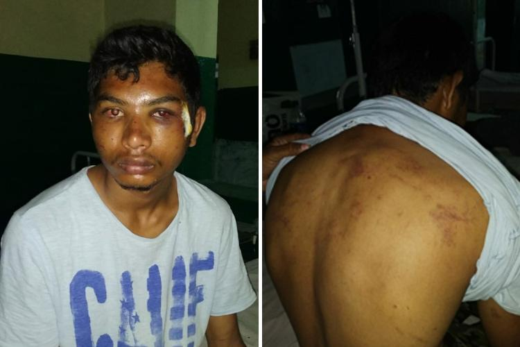 Dalit man thrashed in Telangana by family of upper caste woman for trying to elope