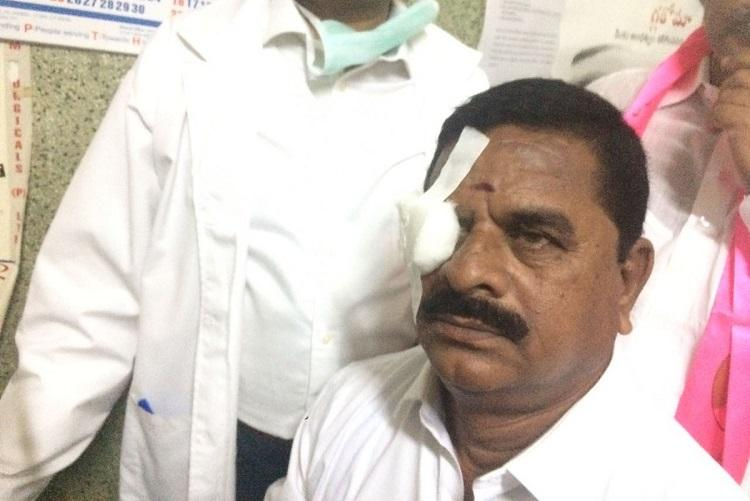 Watch Cong MLA flings headphone in Telangana Assembly injures council heads eye