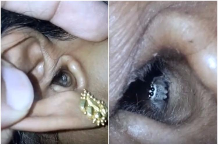 Watch The moment a spider crawls out of a Bengaluru womans ear is sure to creep you out