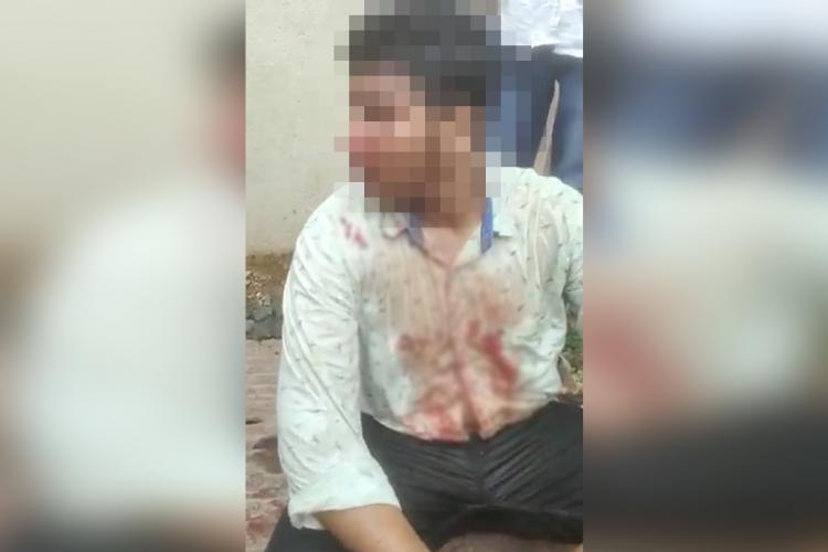Boy hit for wearing skull cap in Bagalkot district of Karnataka