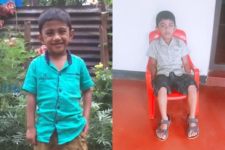 Kerala boy loses vision due to medicines Therapeutic misadventure or unforeseeable reaction