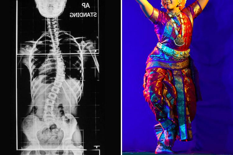 This girl had a curved spine now she is a Bharatanatyam dancer thanks to a miracle surgery