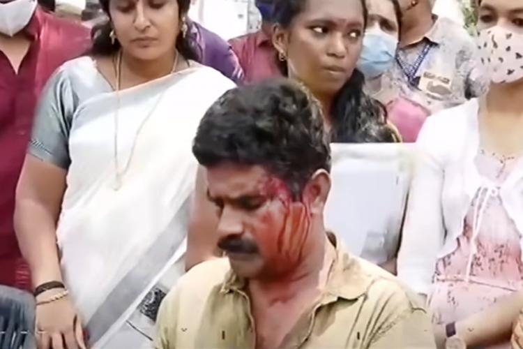 An injured man sits with blood on his face and a few women standing in the background