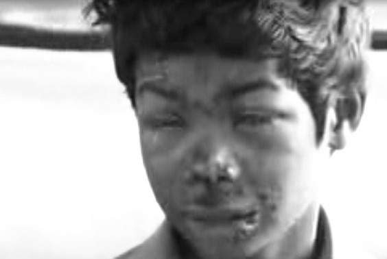 Nine-year-old Chennai boy suffers severe burns as mobile on charge explodes