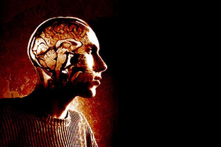 Early-onset Alzheimers should you worry