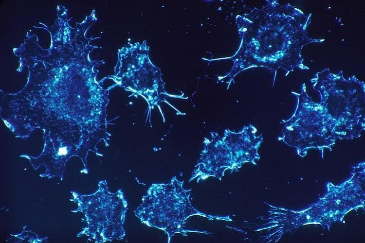 Researchers develop AI-based algorithm to detect cervical cancers more accurately