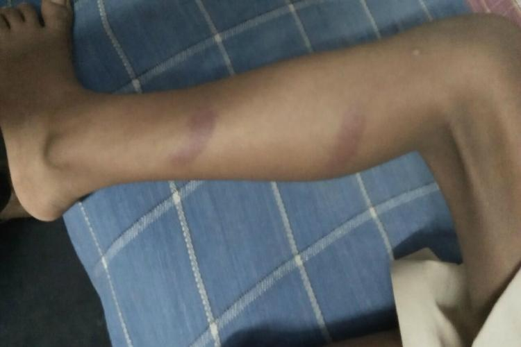 Class 3 student beaten up in Andhra school issues TC to him and sibling when questioned
