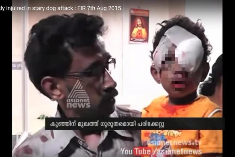 Anger brews as three-year-old bitten by stray dog in Kerala