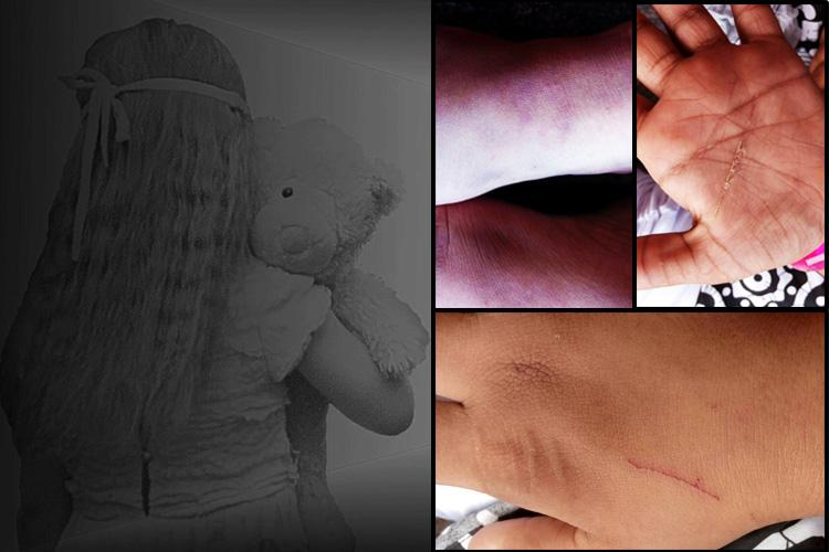 Locked up tied and beaten Girl with intellectual disability allegedly abused in Kerala school