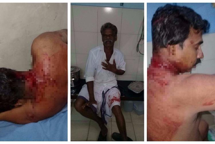 CPIM workers and policemen injured in country bomb attack in Kannur