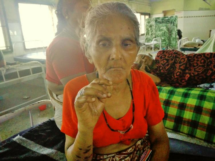 There are cigarette burns all over my hands Chennai woman attacked by robber
