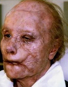 Gary Oldman before and after his make-up for the 2001 movie Hannibal