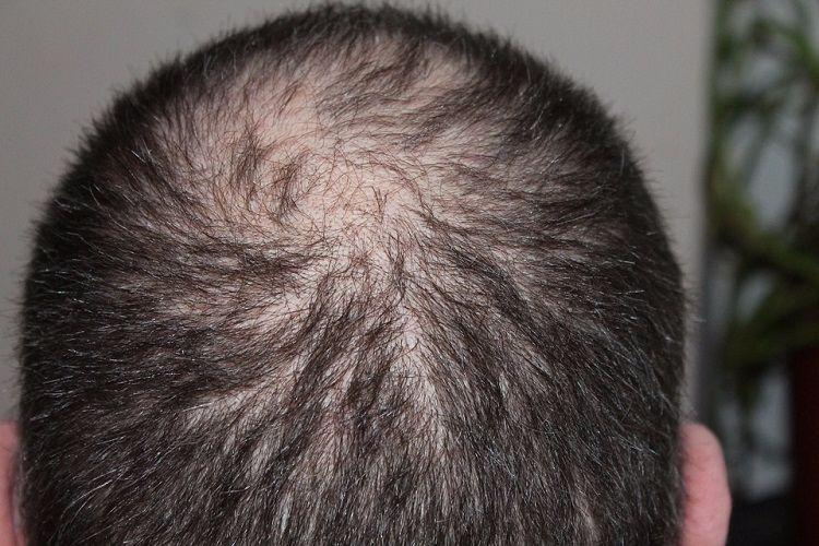 Why short fair men go bald prematurely