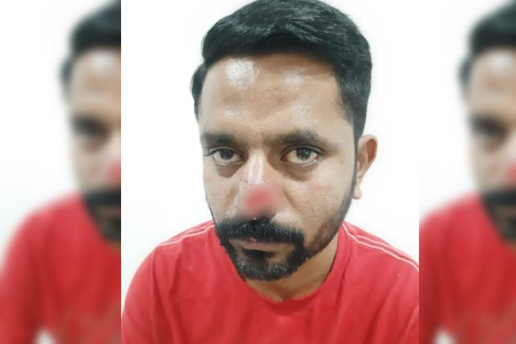 Hyderabad man bites off part of friends nose over financial dispute booked