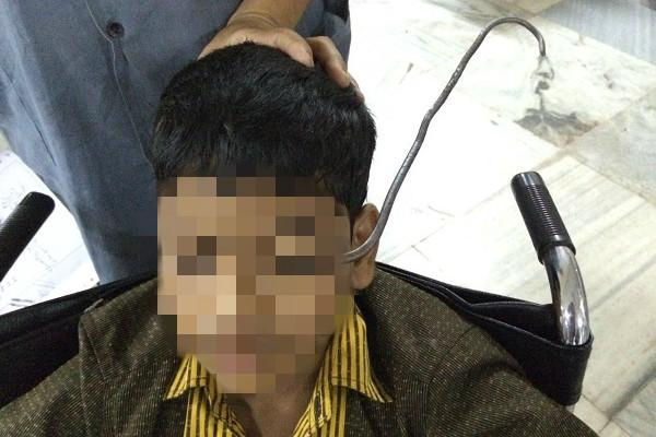 12-year-old Hyd boy operated on for iron hook pierced in eye and skull