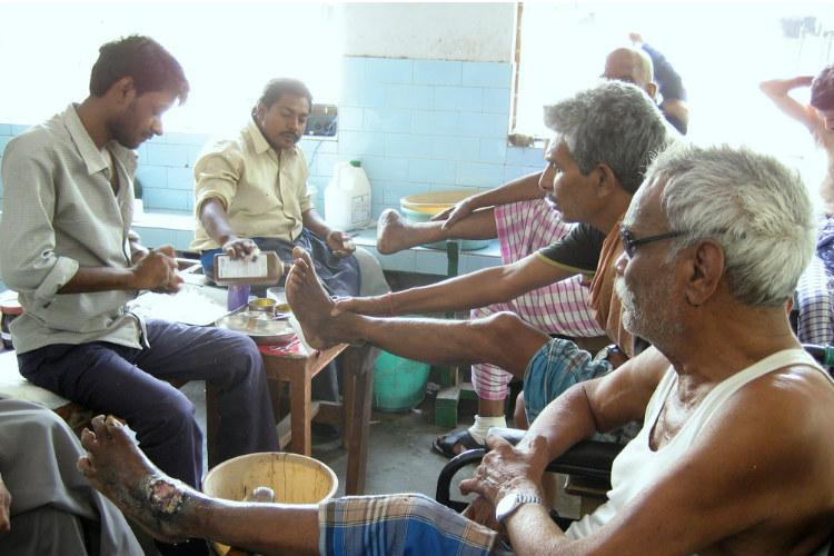 Spread awareness on curability of leprosy end stigma SC tells Centre states