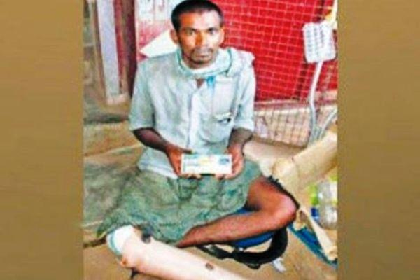 He lost a leg and took to begging now won a lottery worth Rs 65 lakh