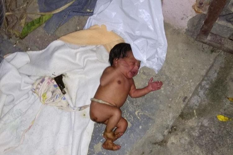 Newborn girl wrapped in a plastic bag abandoned in the heart of Bengaluru