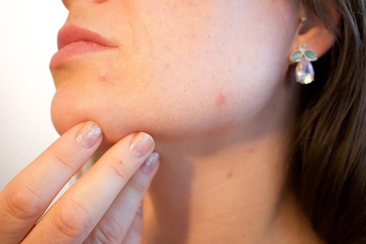 Health Check is it bad to pop your pimples