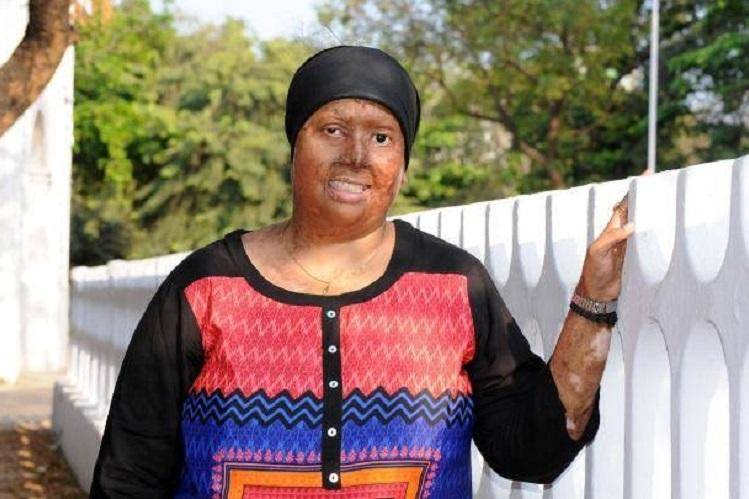Bengaluru-based acid attack survivor now supports burn victims