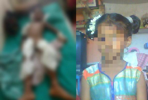 Stray dogs attack rip flesh off six-year-old Bengaluru girl