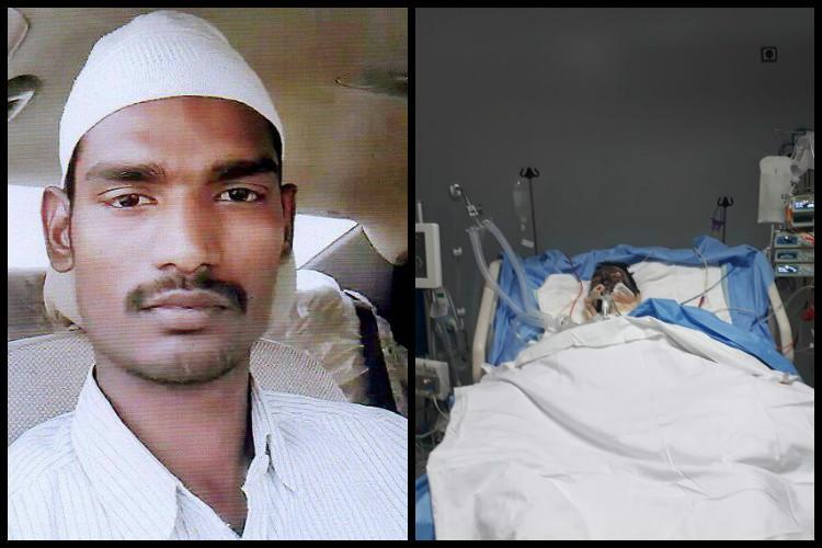 Hyderabad man who was allegedly set on fire by Saudi employer after dispute succumbs to burns