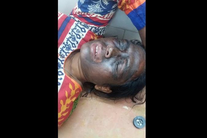 Bastar Police claims conspiracy behind Soni Sori attack statement to be recorded soon