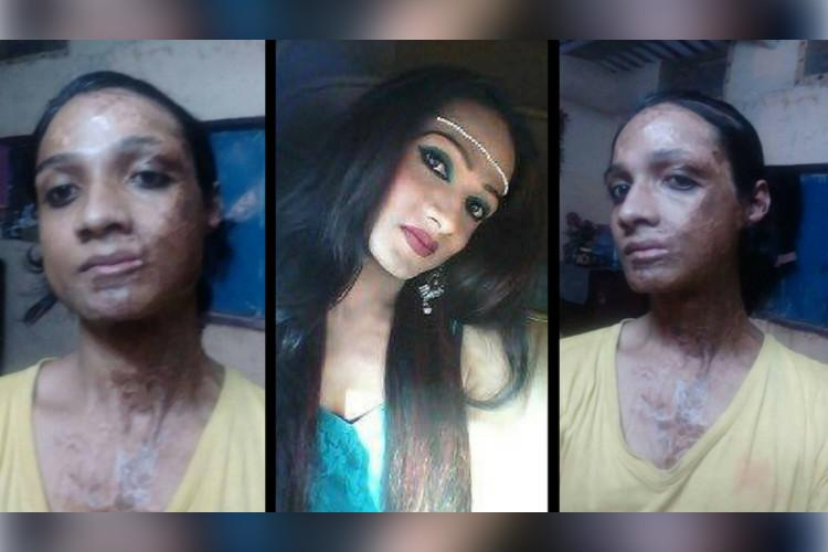 gangraped and burned with acid this transgender woman from