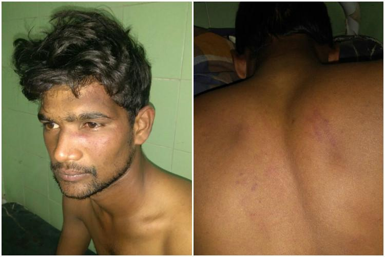 Cricket quarrel leads to casteist attack Dalit youth assaulted in Andhra
